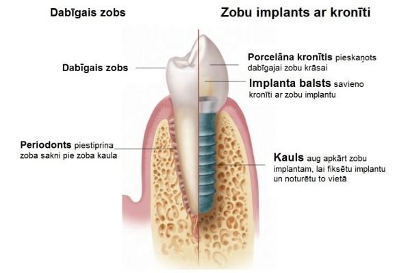 Zobu implanti