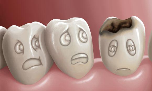 Zobu pūšana